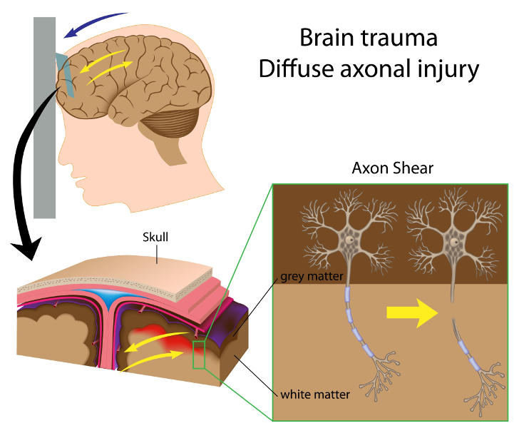 Diagram showing how diffuse axonal injury occurs in traumatic brain injury, including the processes involved in the brain and the effects of axonal shear (copyright shutterstock_89653558)