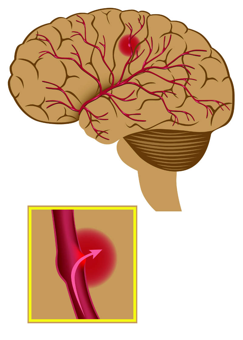 Diagram shows a haemorrhagic stroke, with blood escaping from a ruptured blood vessel (copyright shutterstock_78688366)