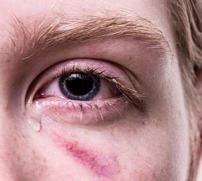 Domestic Abuse Bill debate highlights extent of brain injury among victims of domestic violence Main Image