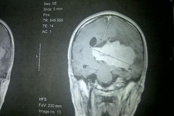 The scan that was taken the day Claire was diagnosed